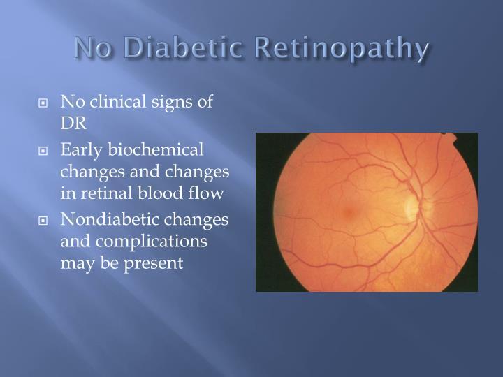 No Diabetic Retinopathy