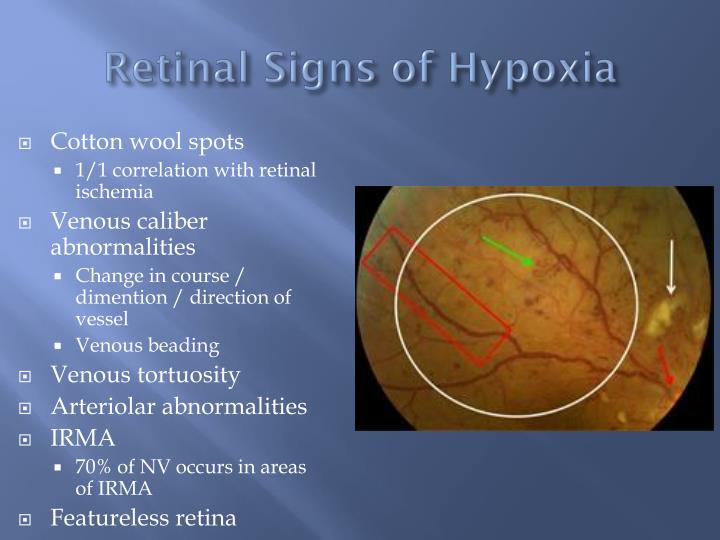 Retinal Signs of Hypoxia