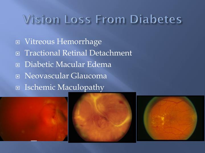 Vision Loss From Diabetes