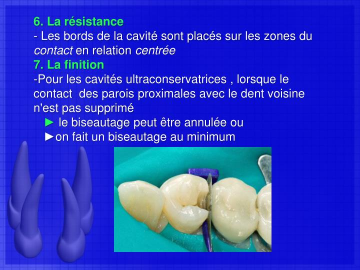 6. La résistance