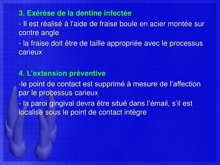 3. Exérèse de la dentine infectée