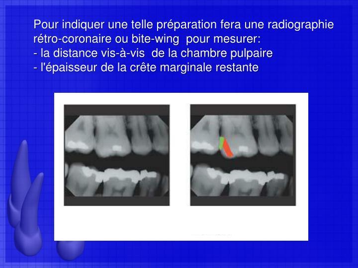 Pour indiquer une telle préparation fera une radiographie rétro-coronaire ou bite-