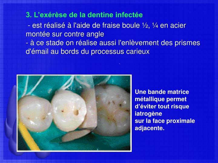 3. L'exérèse de la dentine infectée