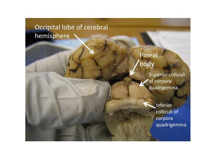 Occipital lobe of cerebral hemisphere