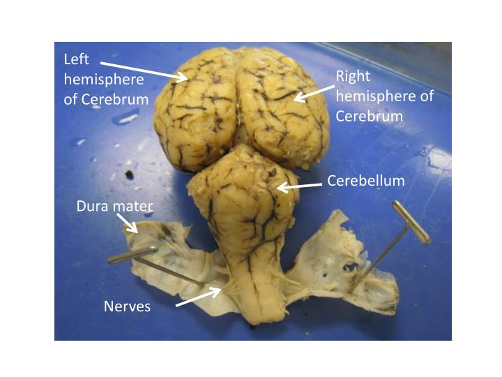 Left hemisphere of Cerebrum
