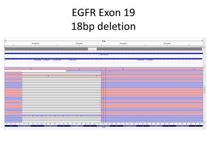 EGFR Exon 19