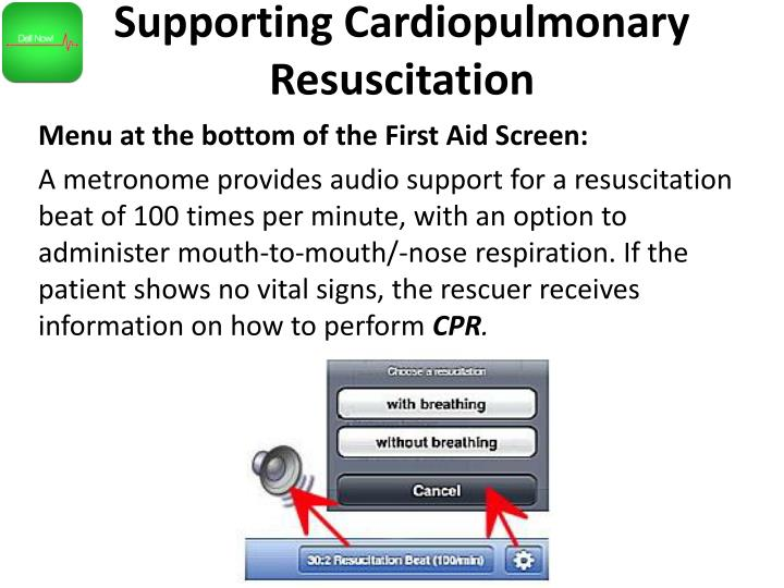 Supporting Cardiopulmonary Resuscitation