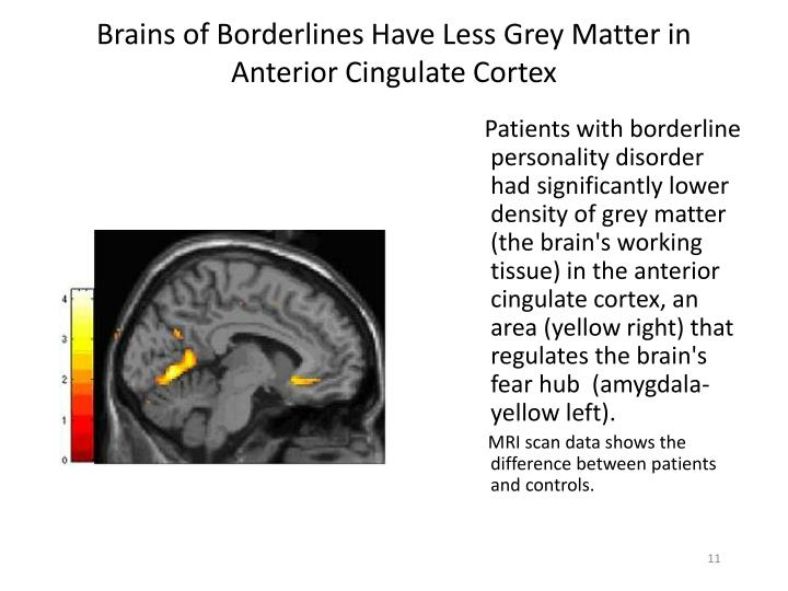 Brains of Borderlines Have Less Grey Matter in Anterior Cingulate Cortex