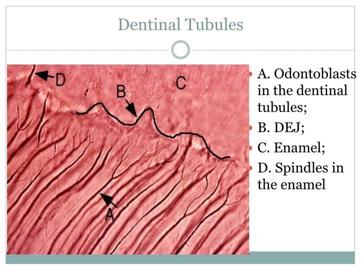 Dentinal Tubules