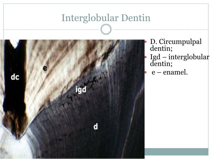 Interglobular Dentin