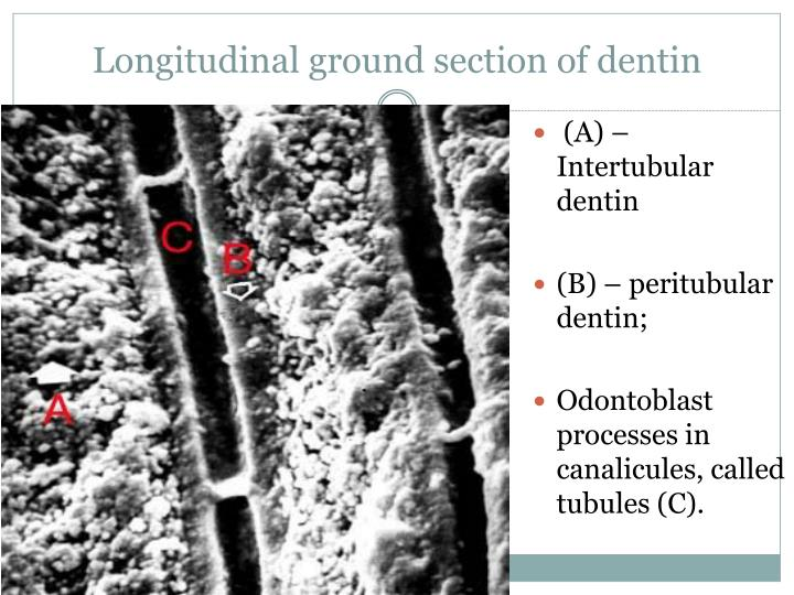 Longitudinal ground section of dentin