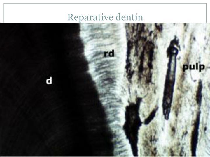Reparative dentin