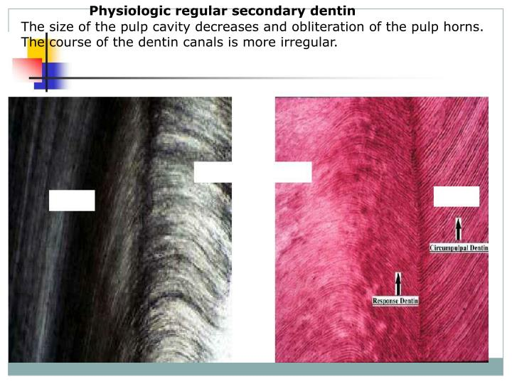 Physiologic regular secondary dentin