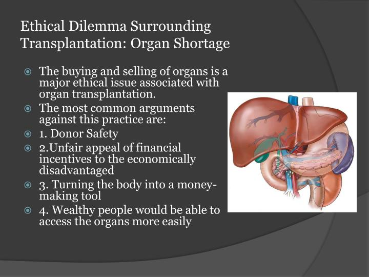 the shortage of organs for clinical transplantation Era of donor-organ shortage james neuberger the clinical criteria and medical organ transplantation and to formulate a code of.