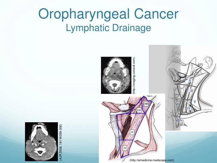 Oropharyngeal Cancer