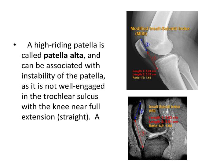 A high-riding patella is called