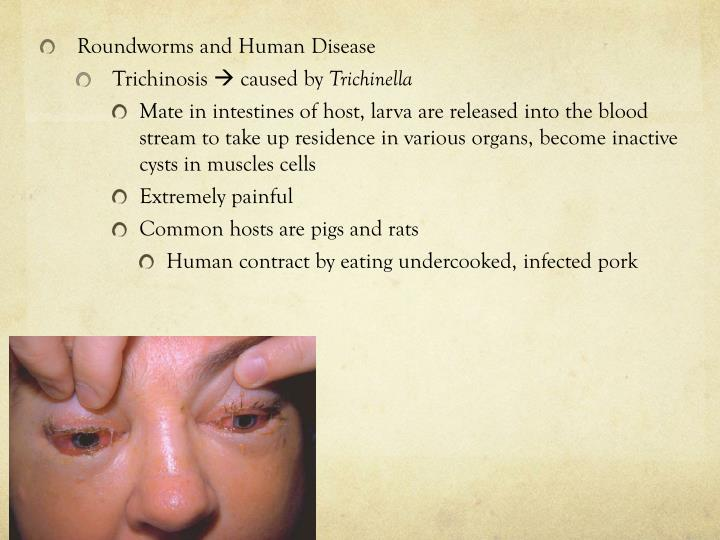Roundworms and Human Disease