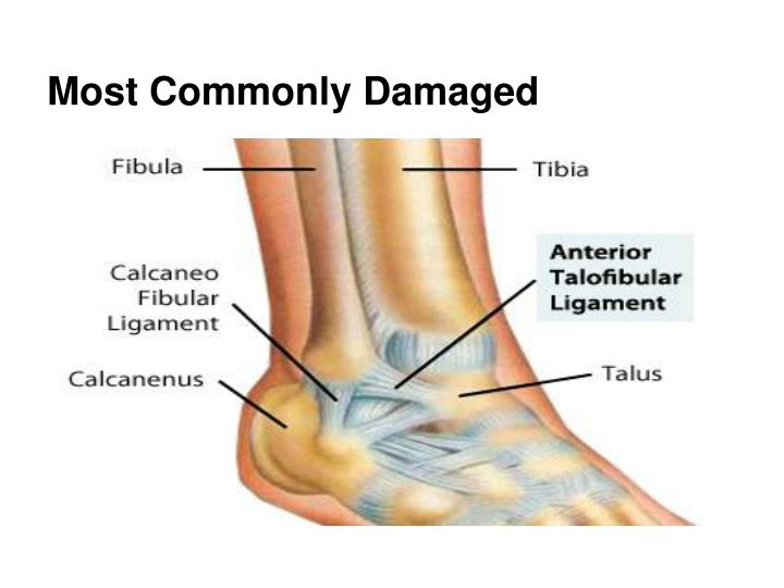 Most Commonly Damaged