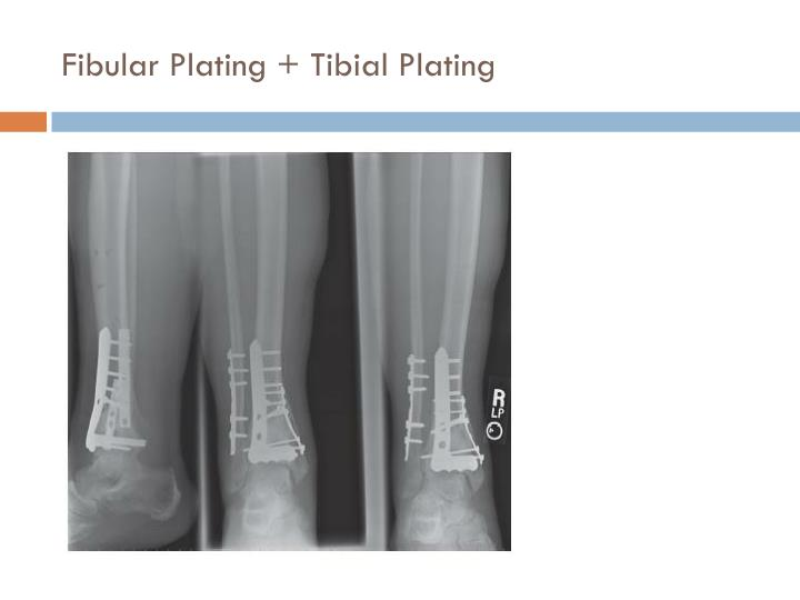 Fibular Plating + Tibial Plating
