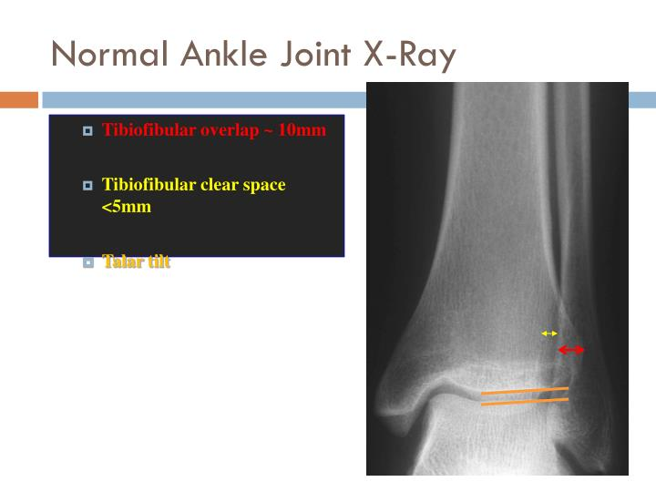 Normal Ankle Joint X-Ray