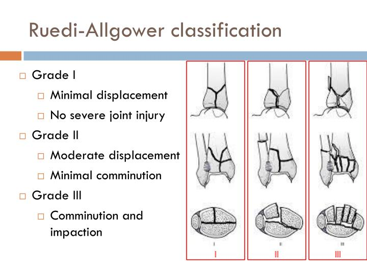 Ruedi-Allgower classification
