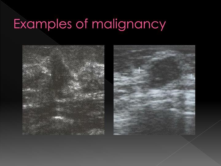 Examples of malignancy