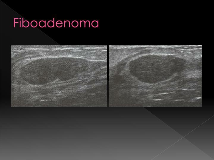 Fiboadenoma