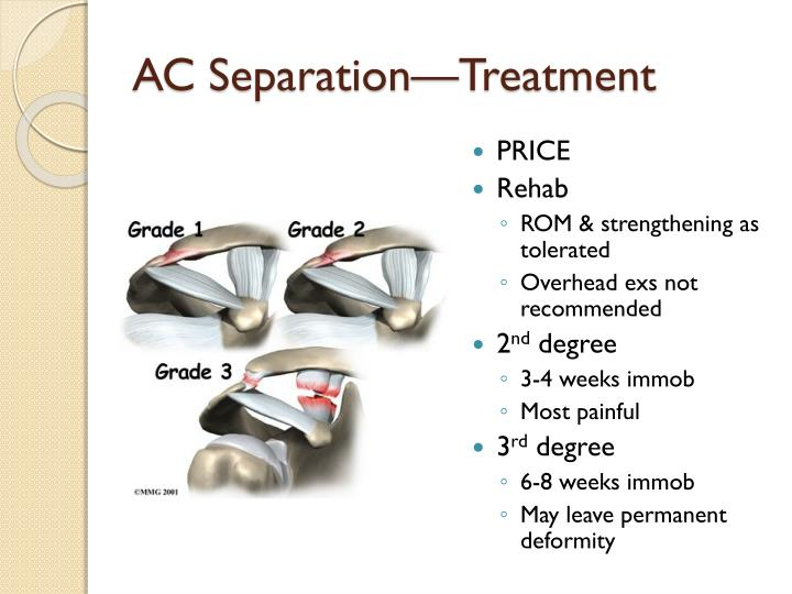 AC Separation—Treatment