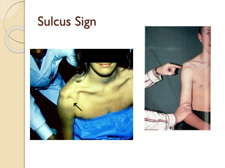 Sulcus Sign