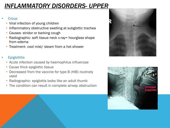 Inflammatory disorders- upper