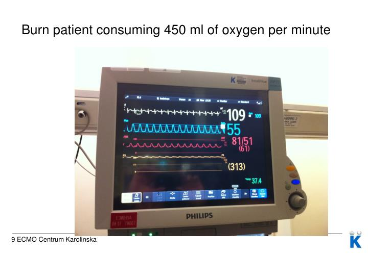 Burn patient consuming 450 ml of oxygen per minute