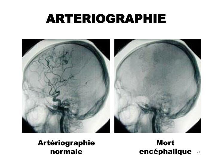 ARTERIOGRAPHIE