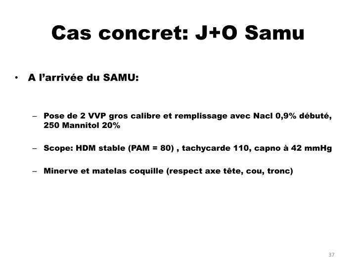 Cas concret: J+O Samu