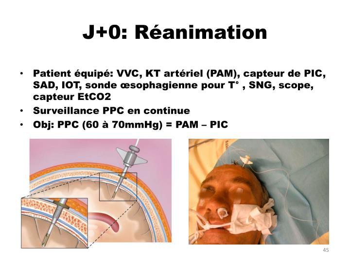 J+0: Réanimation