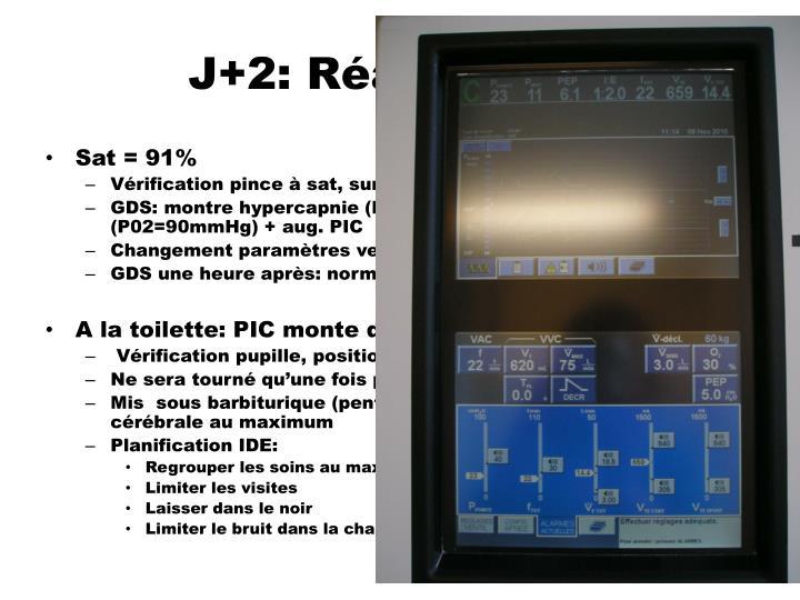 J+2: Réanimation