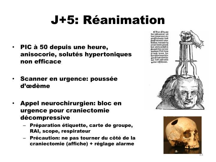 J+5: Réanimation
