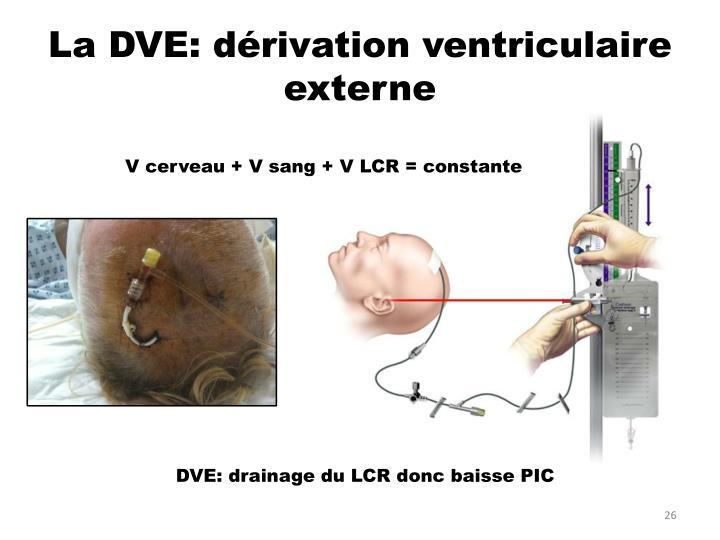 La DVE: dérivation ventriculaire externe
