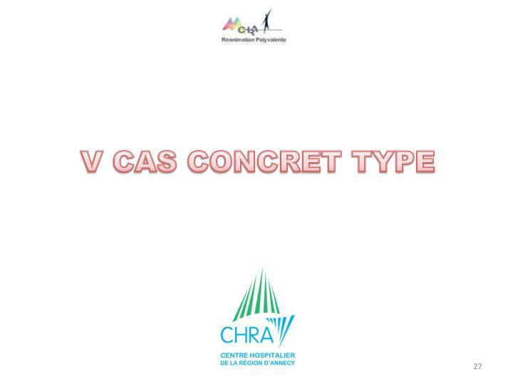 V CAS CONCRET TYPE