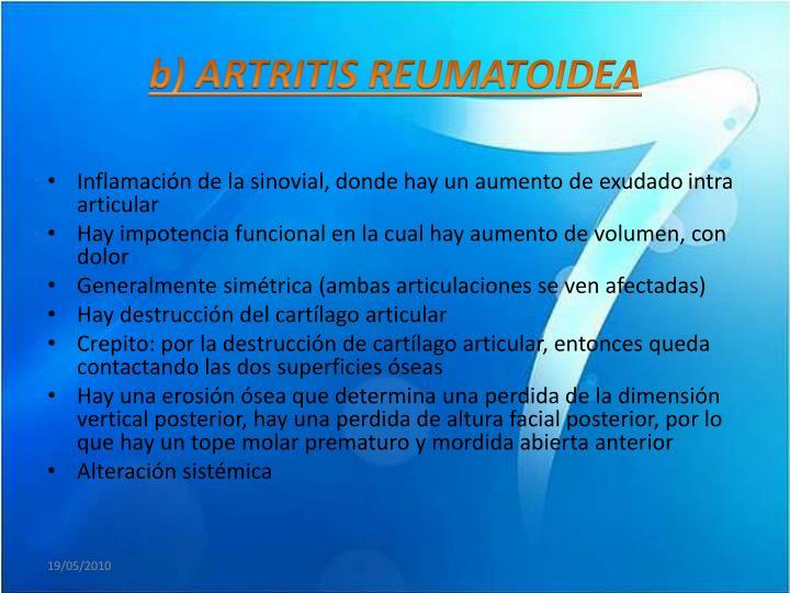 b) ARTRITIS REUMATOIDEA