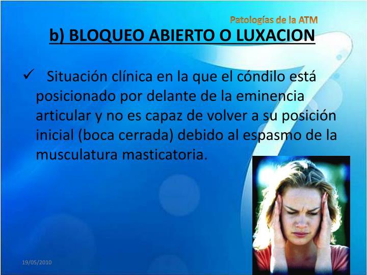 b) BLOQUEO ABIERTO O LUXACION