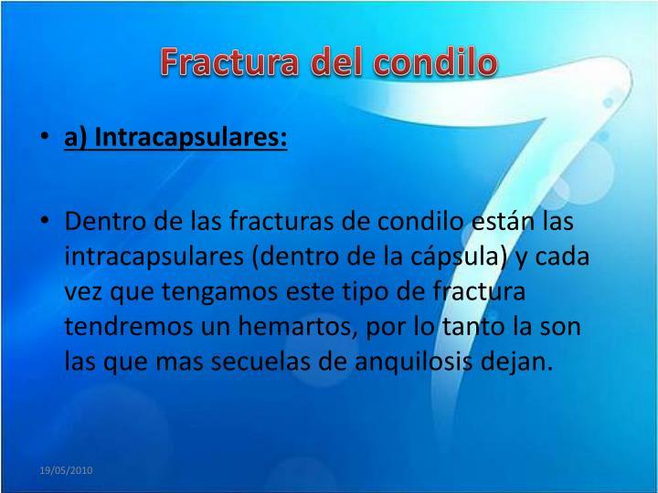 Fractura
