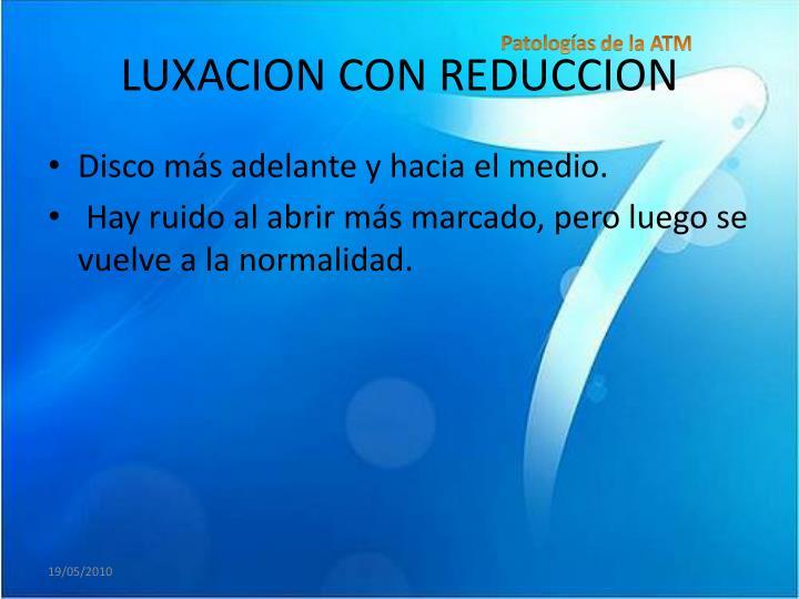 LUXACION CON REDUCCION