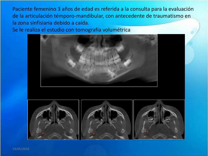 Paciente femenino 3 años de edad es referida a la consulta para la evaluación de la articulación