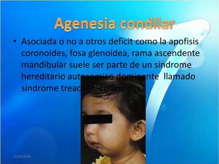 Agenesia