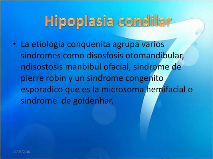Hipoplasia
