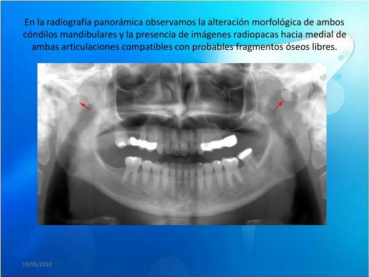 En la radiografía panorámica observamos la alteración morfológica de ambos cóndilos mandibulares y la presencia de imágenes radiopacas hacia medial de ambas articulaciones compatibles con probables fragmentos óseos libres.