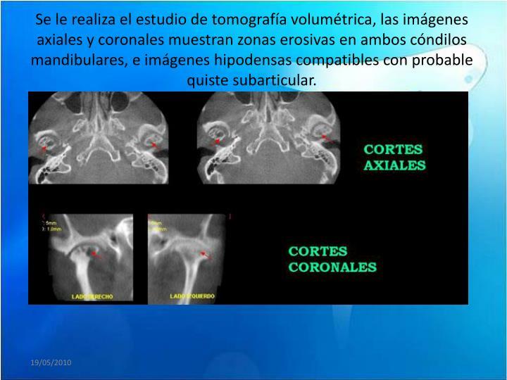 Se le realiza el estudio de tomografía volumétrica, las imágenes axiales y coronales muestran zonas erosivas en ambos cóndilos mandibulares, e imágenes