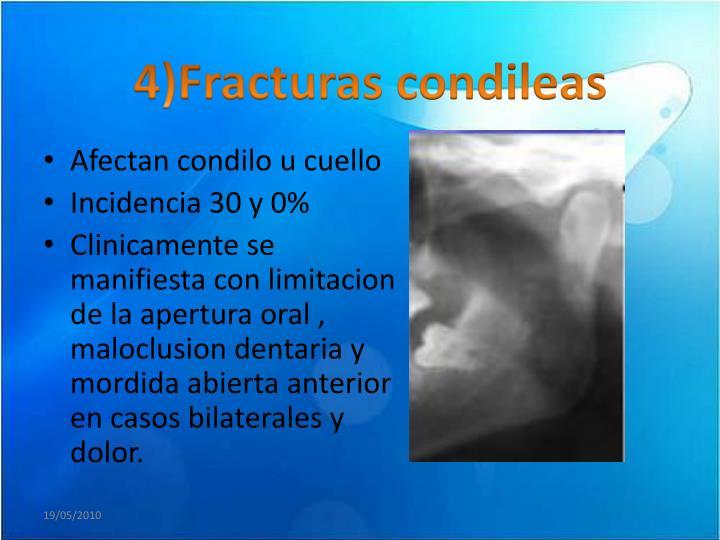 4)Fracturas