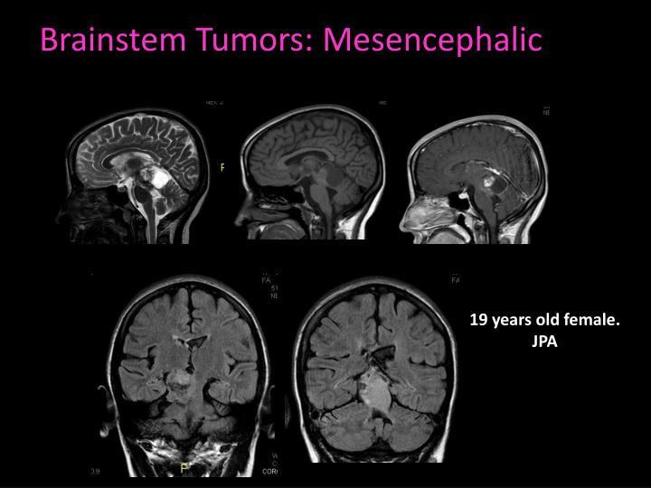 Brainstem Tumors: