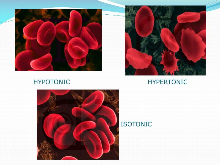 HYPOTONIC    HYPERTONIC
